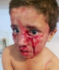 A child victim of a dog bite